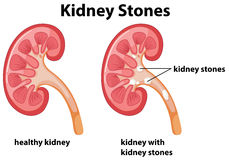 Diagram of kidney stones Royalty Free Stock Image