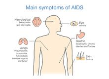 Diagram of Main symptoms of AIDS. Illustration about medical stock illustration