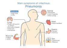 Diagram of main symptoms of infectious Pneumonia. Main symptoms of infectious Pneumonia. Illustration about diagram for health check up Royalty Free Stock Image