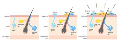 Free Diagram Of Body Odor And Sweat Glands. Human Skin Layer Illustration For Medical And Health Care Use Royalty Free Stock Images - 166284719