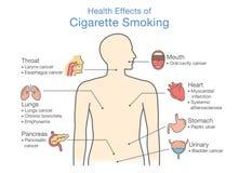 Diagram om vård- effekt av att röka för cigarett stock illustrationer
