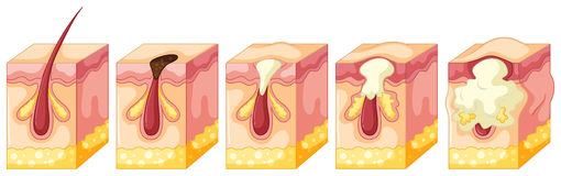 Diagram of pimple on human skin Stock Image