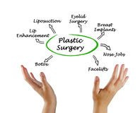 Diagram of Plastic Surgery. Presenting Diagram of Plastic Surgery stock image