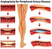 Diagram pokazuje angioplasty dla peryferyjnej arterii choroby Zdjęcie Stock