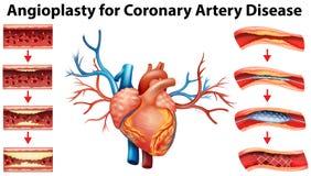 Diagram pokazuje angioplasty dla wieńcowej arterii choroby Obrazy Stock