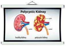 Diagram of polycystic kidney Stock Photo