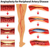 Diagram showing angioplasty for peripheral artery disease Stock Photo