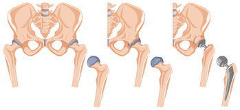 Diagram showing the hip bone treatment Stock Images