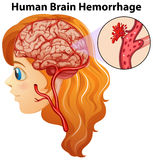 Diagram showing human brain hemorrhage Royalty Free Stock Photos