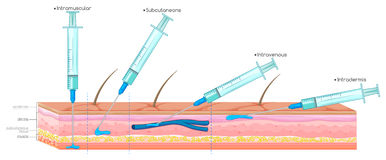 Free Diagram Showing Injection With Syringe Stock Photo - 73941580