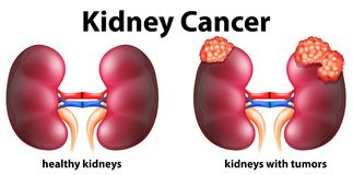 Diagram showing kidney cancer in human Stock Image