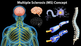Diagram showing multiple sclerosis concept Royalty Free Stock Photo