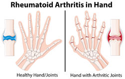 Diagram showing rheumatoid arthritis in hand Stock Images
