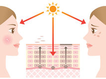 Diagram of skin spots Royalty Free Stock Image