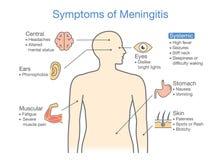 Diagram till uppvisning av tålmodiga tecken med meningitsjukdomen Royaltyfri Fotografi