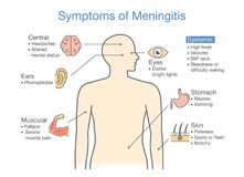 Diagram to showing patient symptoms with Meningitis disease. Royalty Free Stock Photography