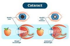 Diagram van de cataract het vectorillustratie, anatomische regeling royalty-vrije illustratie