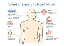 Diagram about warning signs of a heart attack. Illustration about medical diagram for diagnose a disease or condition Stock Photos