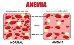 Diagrama da anemia ilustração do vetor