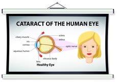 Diagrama da catarata no olho humano ilustração royalty free