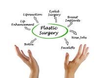 Diagrama da cirurgia plástica imagem de stock
