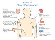 Diagrama de efectos de la privación del sueño stock de ilustración