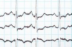 Diagrama de EKG Fotografía de archivo libre de regalías