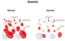 Diagrama de la anemia ilustración del vector