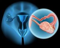 Diagrama del cáncer ovárico en mujer Fotografía de archivo
