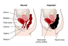 Diagrama del intestino constipated Fotografía de archivo libre de regalías