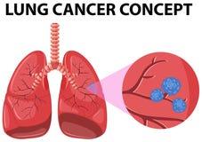 Diagrama do conceito do câncer pulmonar ilustração royalty free
