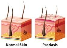 Diagrama humano da pele com normal e psoríase ilustração royalty free