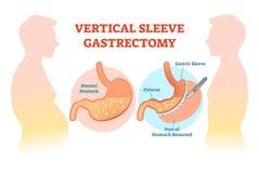 Diagrama médico da ilustração do vetor da incisão do estômago vertical da luva com corte cirúrgico do estômago ilustração stock