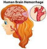 Diagrama que mostra a hemorragia de cérebro humano ilustração do vetor