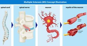 Diagrama que mostra o conceito da esclerose múltipla ilustração stock