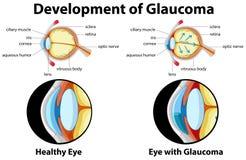 Diagrama que mostra o desenvolvimento da glaucoma ilustração royalty free