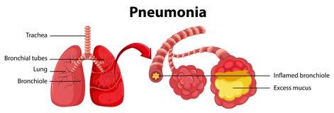 Diagrama que mostra o pulmão com pneumonia ilustração do vetor
