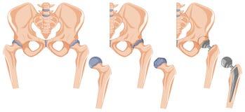 Diagrama que mostra o tratamento anca do osso ilustração stock