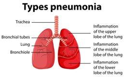 Diagrama que mostra tipos pneumonia ilustração do vetor