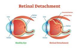 Diagrama retiniano del ejemplo del vector de la separación, esquema anatómico stock de ilustración