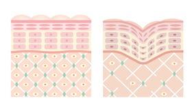Diagramas de la piel joven y de la piel vieja Imagenes de archivo