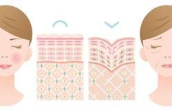 Diagramas de la piel joven y de la piel vieja Fotos de archivo libres de regalías