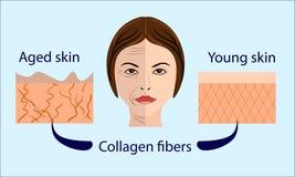 Diagramas del envejecimiento de la piel la piel joven es apretada firme, su ejemplo del vector del colágeno con una cara y dos ti Fotos de archivo