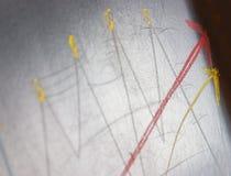 diagramframgång fotografering för bildbyråer