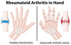 Diagramm, das in der Hand rheumatoide Arthritis zeigt lizenzfreie abbildung