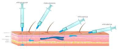 Diagramm, das Einspritzung mit Spritze zeigt stock abbildung