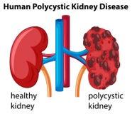 Diagramm, das menschliche polycystic Nierenerkrankung zeigt Lizenzfreie Stockfotos