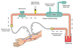 Diagramm des Dialysators Stockbilder