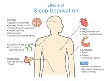 Diagramm von Effekten des Schlaf-Entzugs stock abbildung
