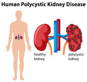 Diagramma che mostra malattia renale policistica umana Immagine Stock